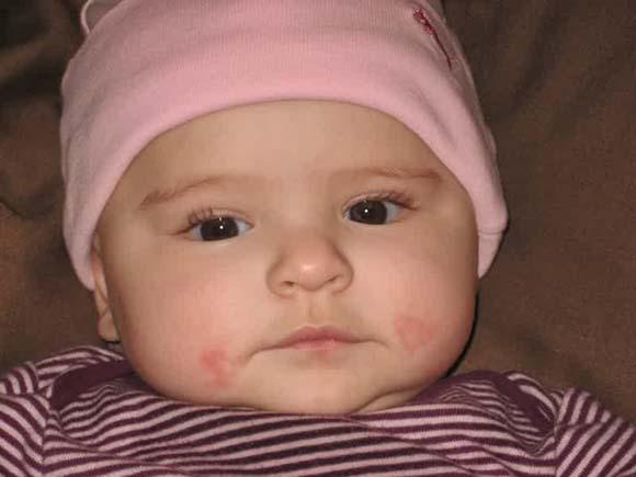 05 baby-teething-drool-rash-