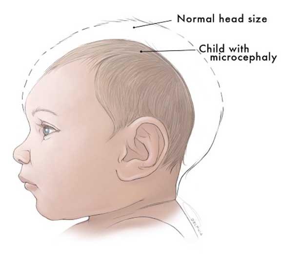 zika-virus-baby-10a